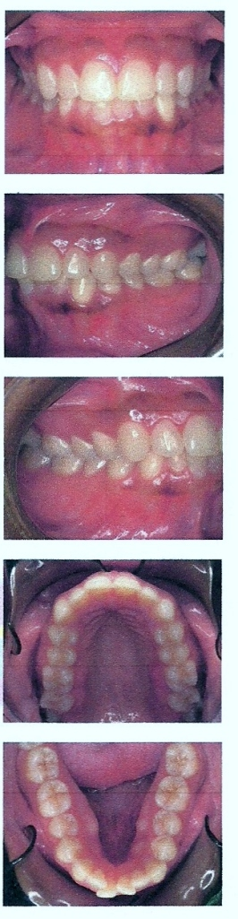 Pictures of my teeth pre-braces
